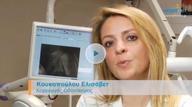 iatronet.gr – Όψεις πορσελάνης